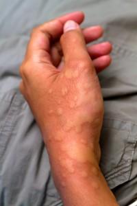 urticaria hand